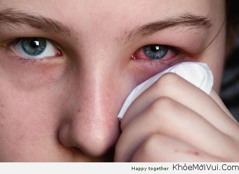 Phân biệt các loại viêm kết mạc mắt