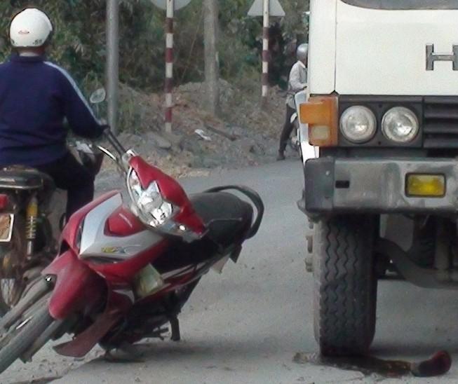 Tránh đường đang thi công, một phụ nữ bị xe tải cán nát chân