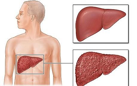 Các thuốc gây độc cho gan