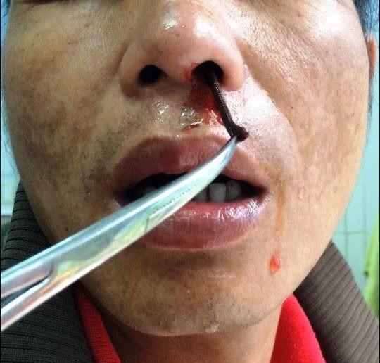 Uống nước suối bị đỉa chui vào lỗ mũi