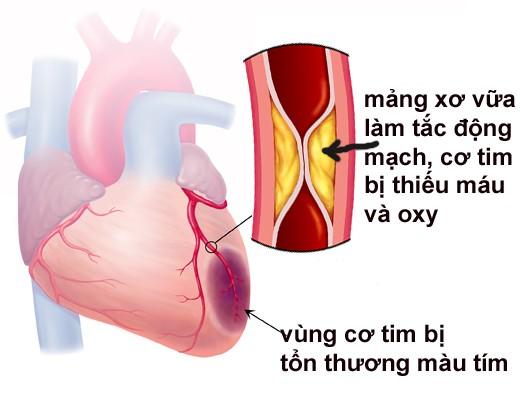Những dấu hiệu sớm cảnh báo nhồi máu cơ tim