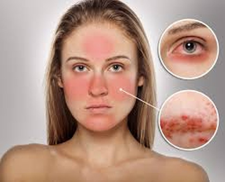 Thường xuyên đỏ mặt là triệu chứng bệnh mất trí nhớ?