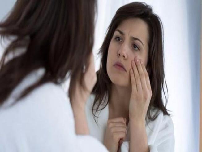 6 lý do làm bạn bị sưng bọng mắt