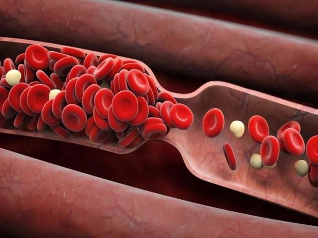 6 dấu hiệu bị tắc nghẽn mạch máu