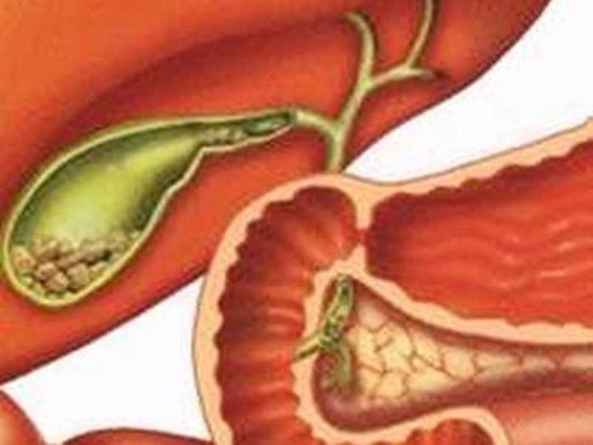 Sỏi túi mật: Bệnh thầm lặng mà nguy hiểm
