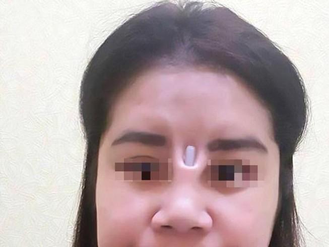 Bị thanh silicon đâm thủng mũi chòi ra giữa mặt