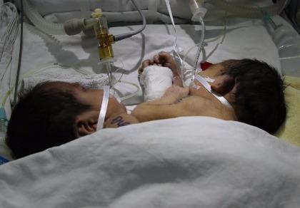 Hai bé sơ sinh dính liền ở Hà Giang đã mất