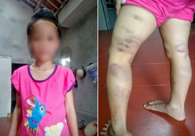 Học sinh lớp 2 bị cô giáo đánh tím đùi vì viết sai chính tả