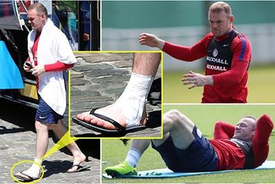 Fan Anh lo sốt vó khi thấy Rooney băng chân