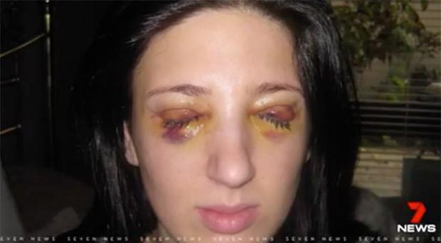 Cô gái với đôi mắt 3 ngày đóng, 3 ngày mở - ảnh 1