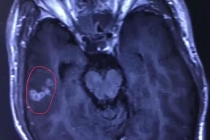 Phát hiện sán dài 10cm, sống khỏe trong não bệnh nhân - ảnh 1
