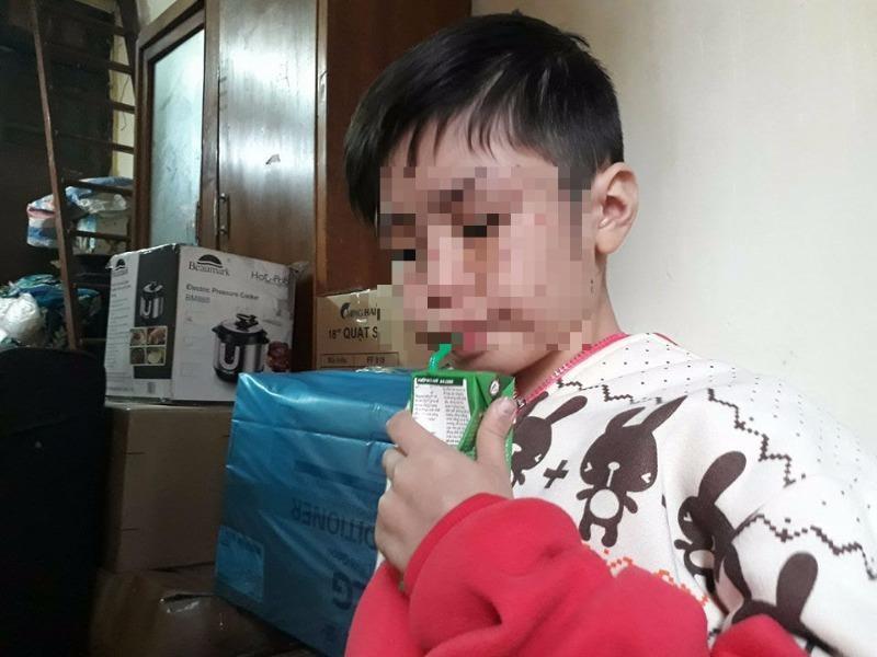 Bé trai 10 tuổi bị cha bạo hành: Mẹ ruột quá bất ngờ!  - ảnh 2
