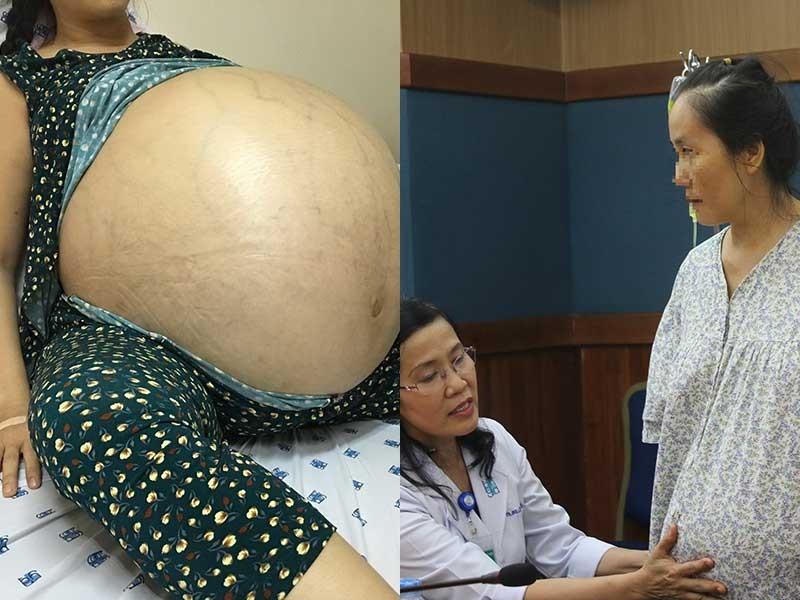 Giải cứu phụ nữ mang khối u 50 kg gần 4 năm - ảnh 1