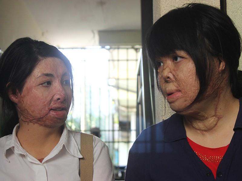 2 cô gái bị chồng đốt tựa vào nhau tìm lại hình hài - ảnh 2