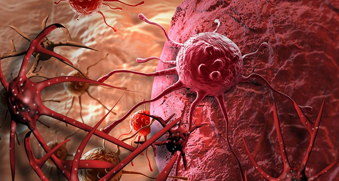 8 quan niệm sai lầm về bệnh ung thư cần từ bỏ ngay - ảnh 3