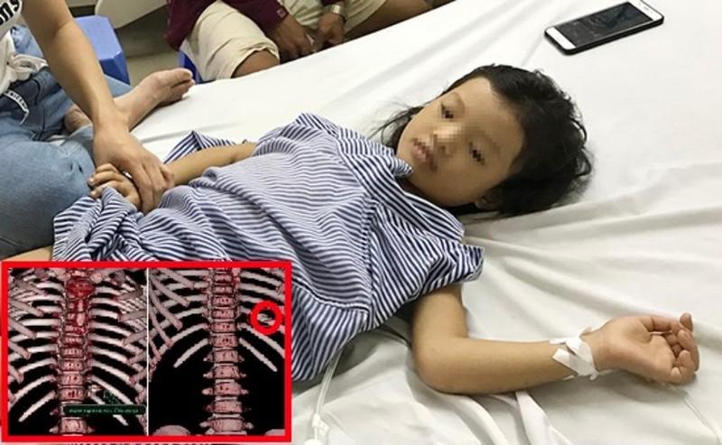 Bé 7 tuổi bị đạn lạc xuyên thấu ngực - ảnh 1