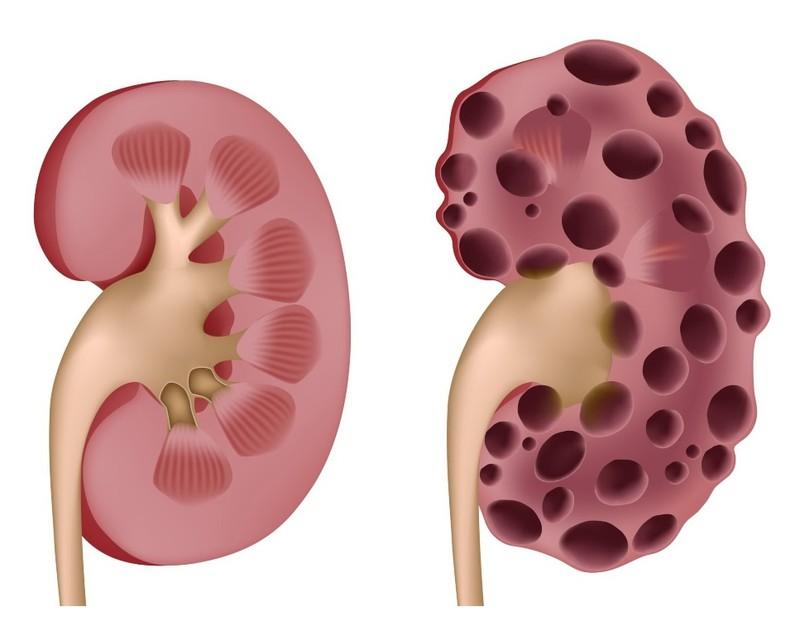 Phương pháp mới dành cho người bệnh gout lâu năm - ảnh 2