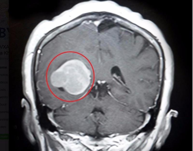 Khối u màng não to như trứng g
