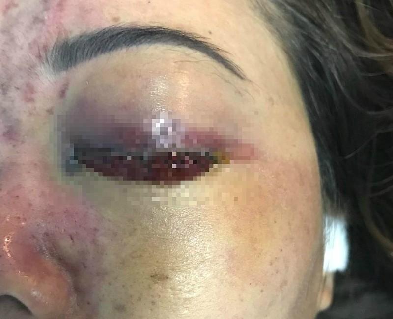 Tiêm thuốc nâng mũi ở chung cư, cô gái bị mù một mắt - ảnh 1