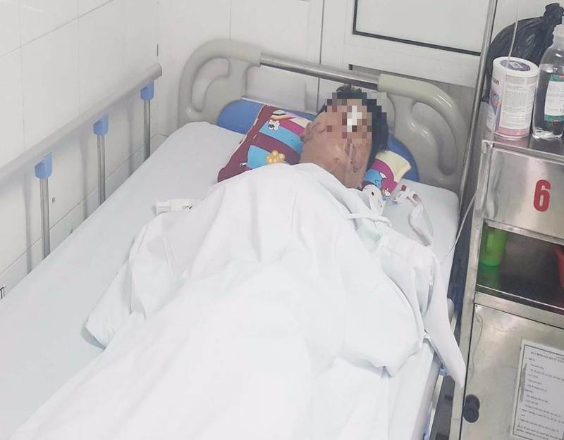 Anh H. đang được điều trị tại BV Việt Đức (Hà Nội)