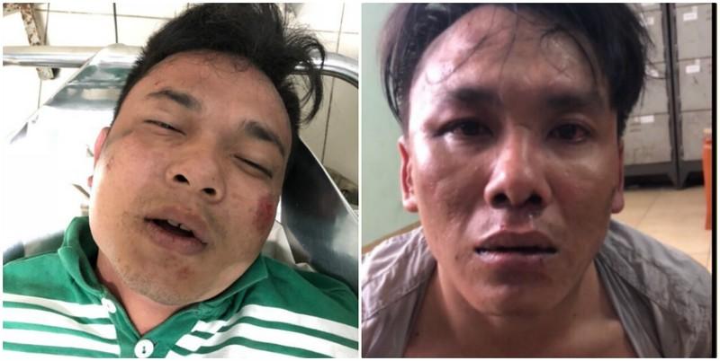 Vụ hình sự nổ súng bắt cướp ở Gò Vấp: Hơn cả phim hành động - ảnh 2
