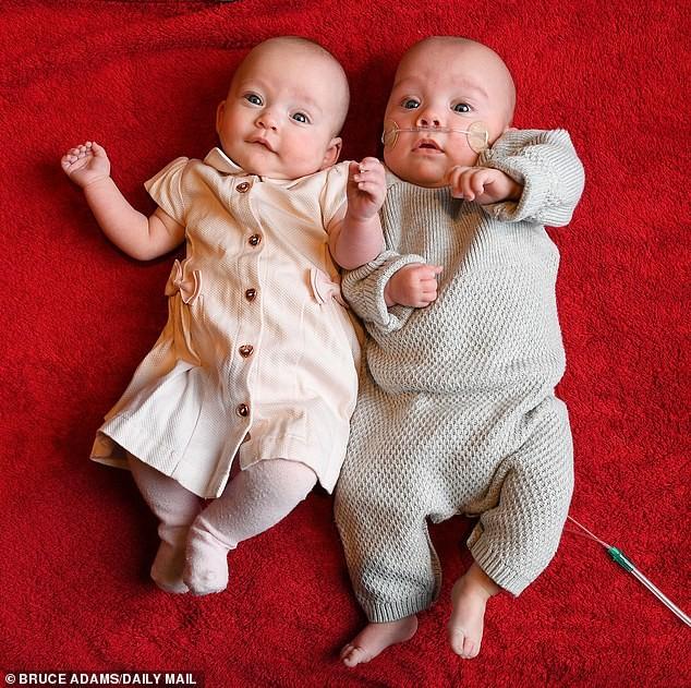 Kì lạ cặp song sinh ra đời cách nhau 12 ngày - ảnh 2