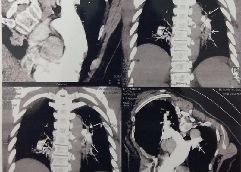 Hình ảnh huyết khối trong các nhánh động mạch phổi của bệnh nhân
