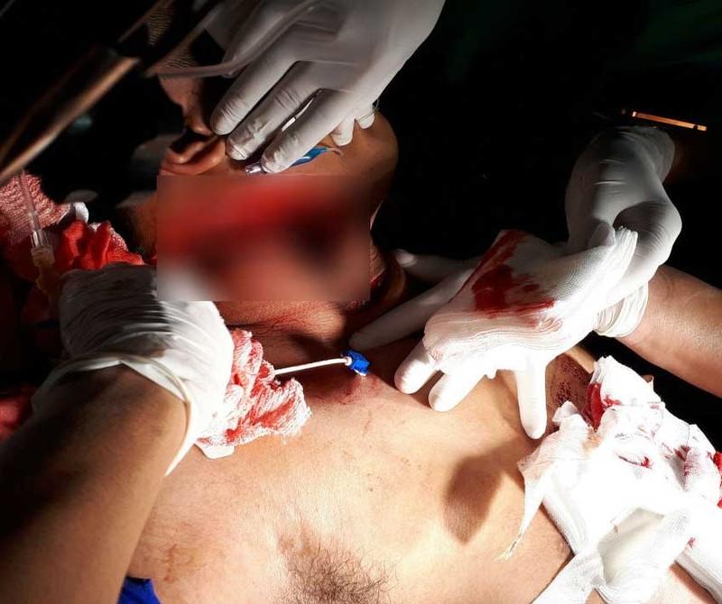Nối lại ruột cho một nạn nhân bị đâm 10 nhát dao - ảnh 1