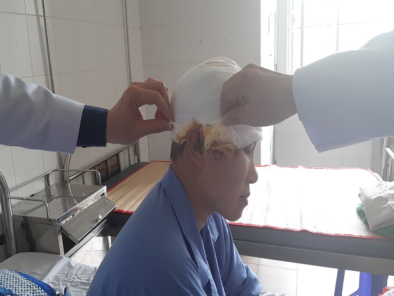 Sửa máy xay lúa, người phụ nữ bị lóc hết da đầu - ảnh 2