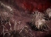 Bị vi khuẩn 'ăn thịt người' ăn mất nửa gương mặt