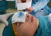 Mũi hoại tử xanh lè do dùng chỉ khâu da để nâng mũi