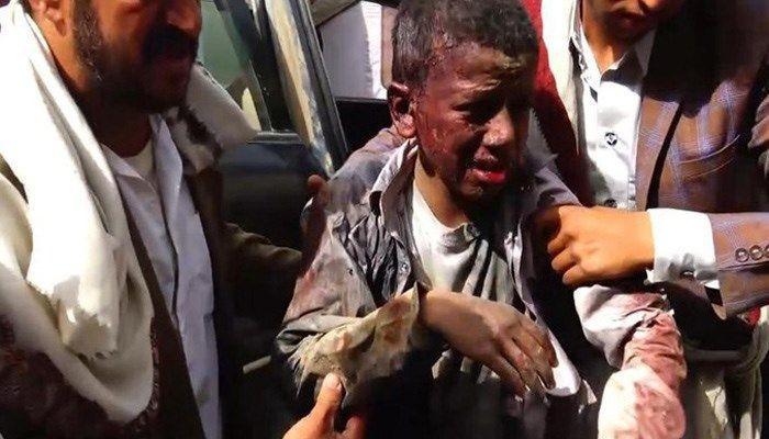 Nạn nhân trẻ em trong trận không kích sáng 9-8 ở Yemen đau đớn tại bệnh viện. Ảnh: AFP