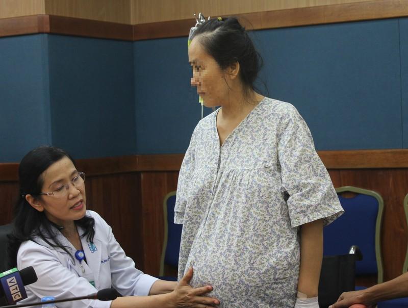 Người phụ nữ mang khối u 50 kg lớn nhất Việt Nam - ảnh 2