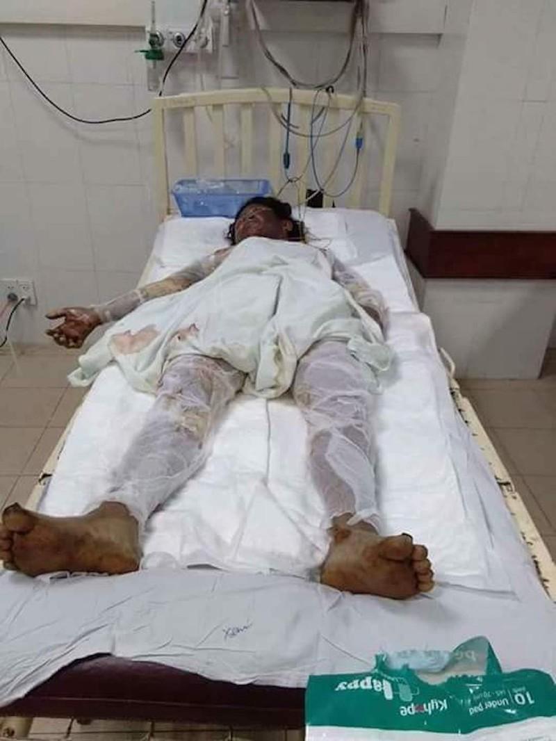 Cứu vợ tự tử, 3 người bị bỏng nặng - ảnh 1