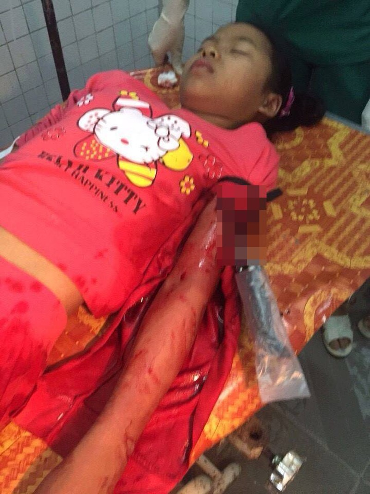 Bắt khẩn cấp hai kẻ bịt mặt đâm bé gái 12 tuổi đêm Noel - ảnh 1