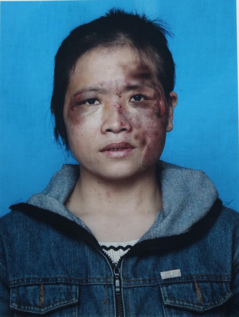 Nghệ An: Chồng tra tấn vợ dã man  - ảnh 1
