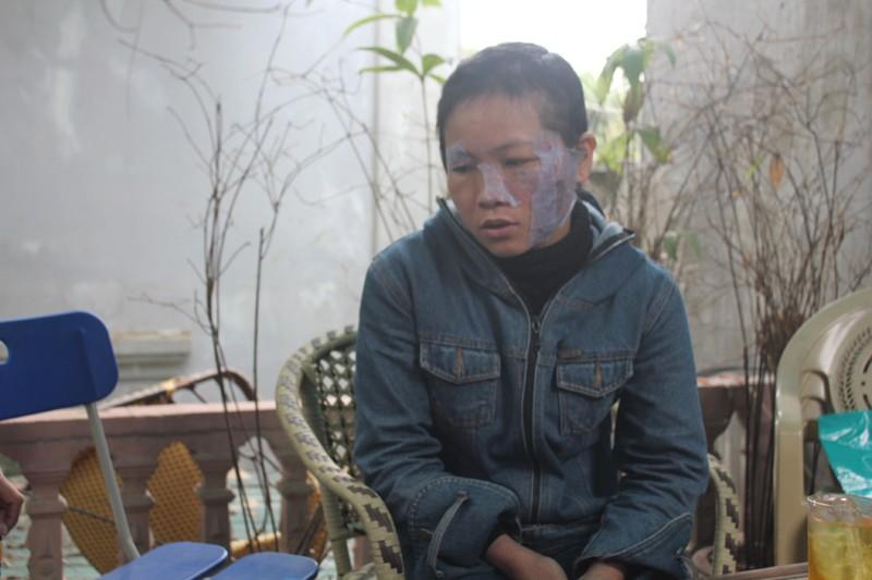 Nghệ An: Chồng tra tấn vợ dã man  - ảnh 2