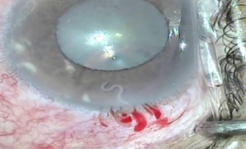 Kỳ lạ: Con giun đũa chó sống trong mắt người phụ nữ - ảnh 1