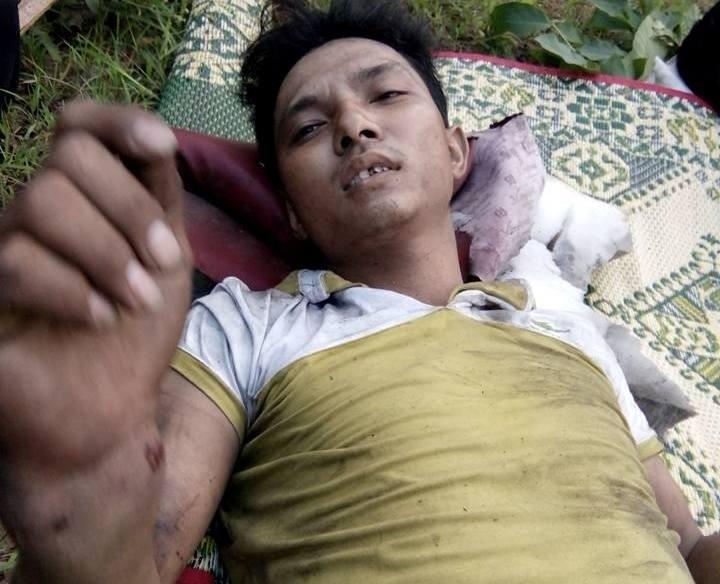 Chùm ảnh: Kinh hoàng vụ nổ xe khách ở Lào, 8 người Việt tử vong - ảnh 5