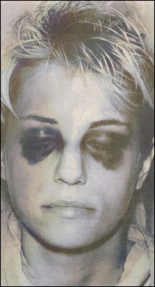 Những bức ảnh tội phạm từng gây chấn động nhất thế giới - ảnh 4