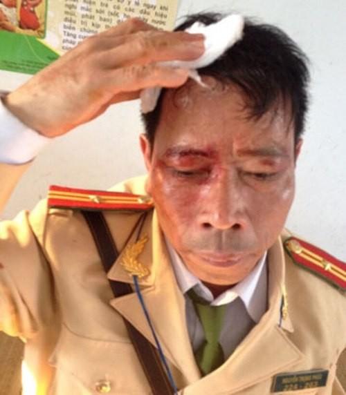 Lao xe vào tổ CSGT, dùng tuýp sắt 'tả xung hữu đột' bị hầu tòa - ảnh 3