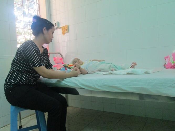 Ngã tại nhà trông trẻ, bé 1 tuổi bị chấn thương sọ não nặng  - ảnh 1