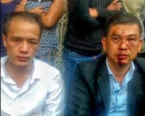 Khởi tố 7 bị can hành hung luật sư vì 'bị bắn bụi bẩn' - ảnh 1