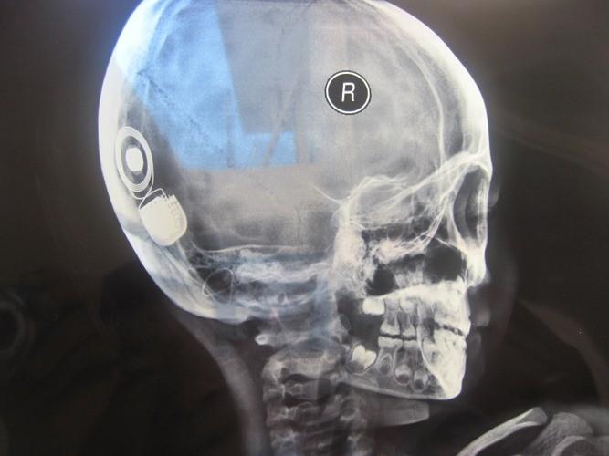 Khánh Hòa: Lần đầu tiên cấy ghép ốc tai điện tử thành công - ảnh 1