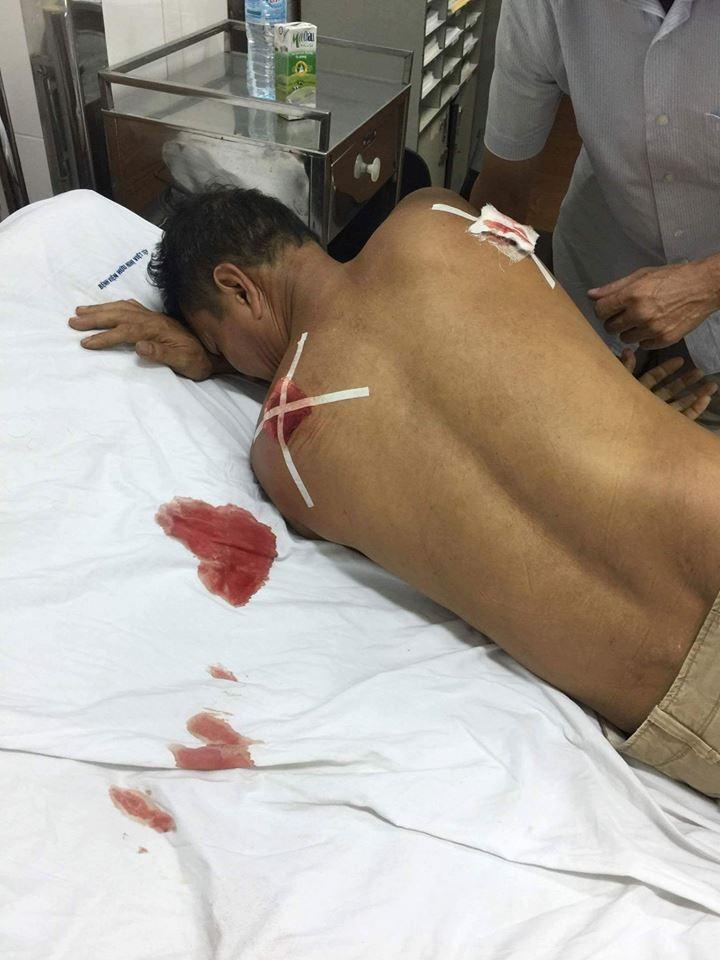 Ông Lưu khi được đưa vào bệnh viện