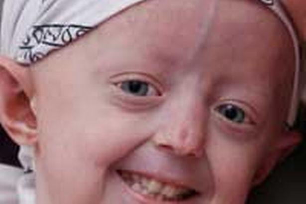 Cô bé mắc chứng 'lão hóa sớm' qua đời ở tuổi 17 - ảnh 1