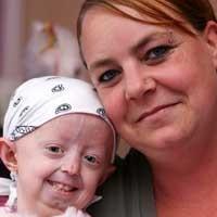 Cô bé mắc chứng 'lão hóa sớm' qua đời ở tuổi 17 - ảnh 2
