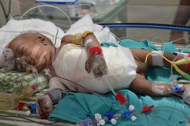 Phẫu thuật thành công cặp song sinh 'dùng chung' tim và gan - ảnh 2