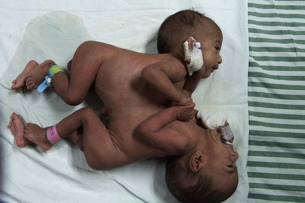 Phẫu thuật thành công cặp song sinh 'dùng chung' tim và gan - ảnh 1
