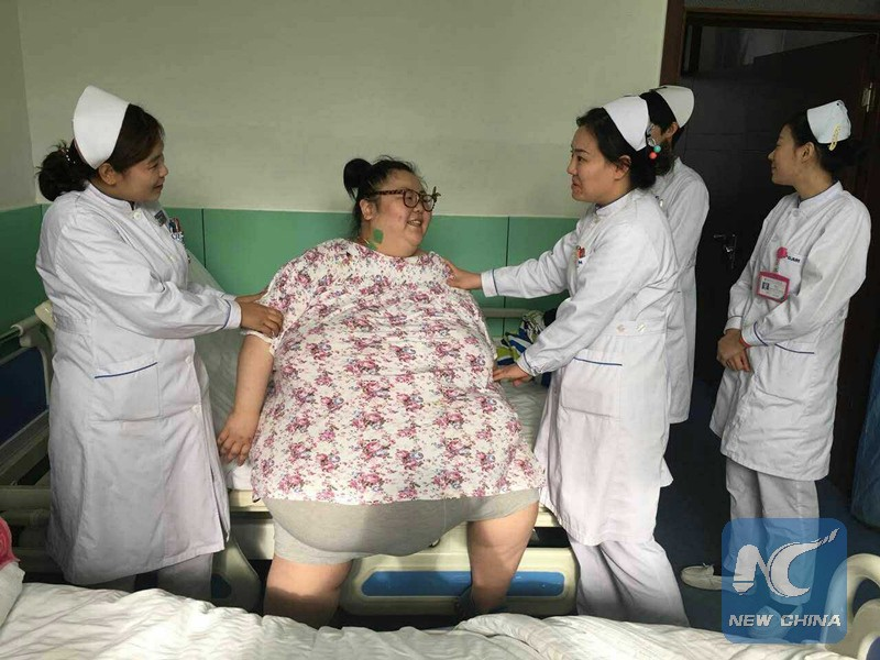 Người phụ nữ nặng 224 kg được phẫu thuật giảm béo thành công - ảnh 1